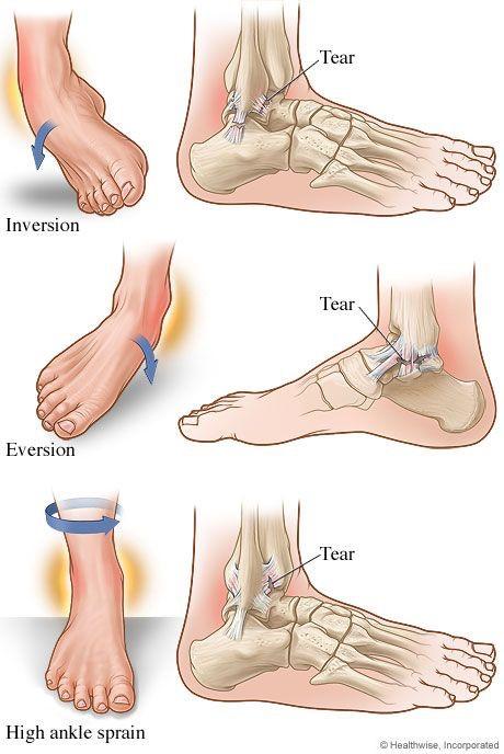 distorsione caviglia tipologie