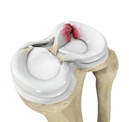 anatomia rottura menisco